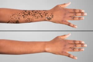 tattoo removal near me